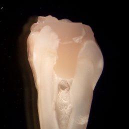 Учёные создали адгезив на основе яичной скорлупы